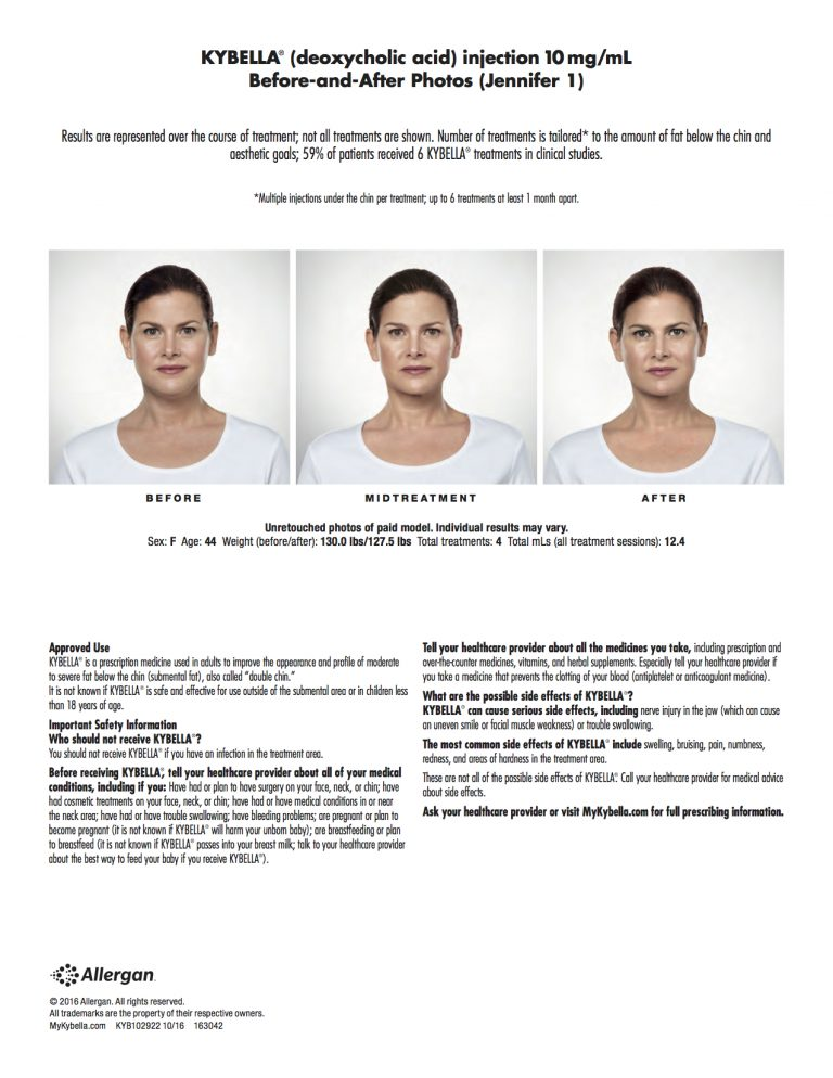 Kybella safety information