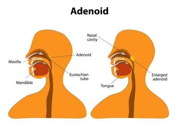 IntegratedENT - Adenoid