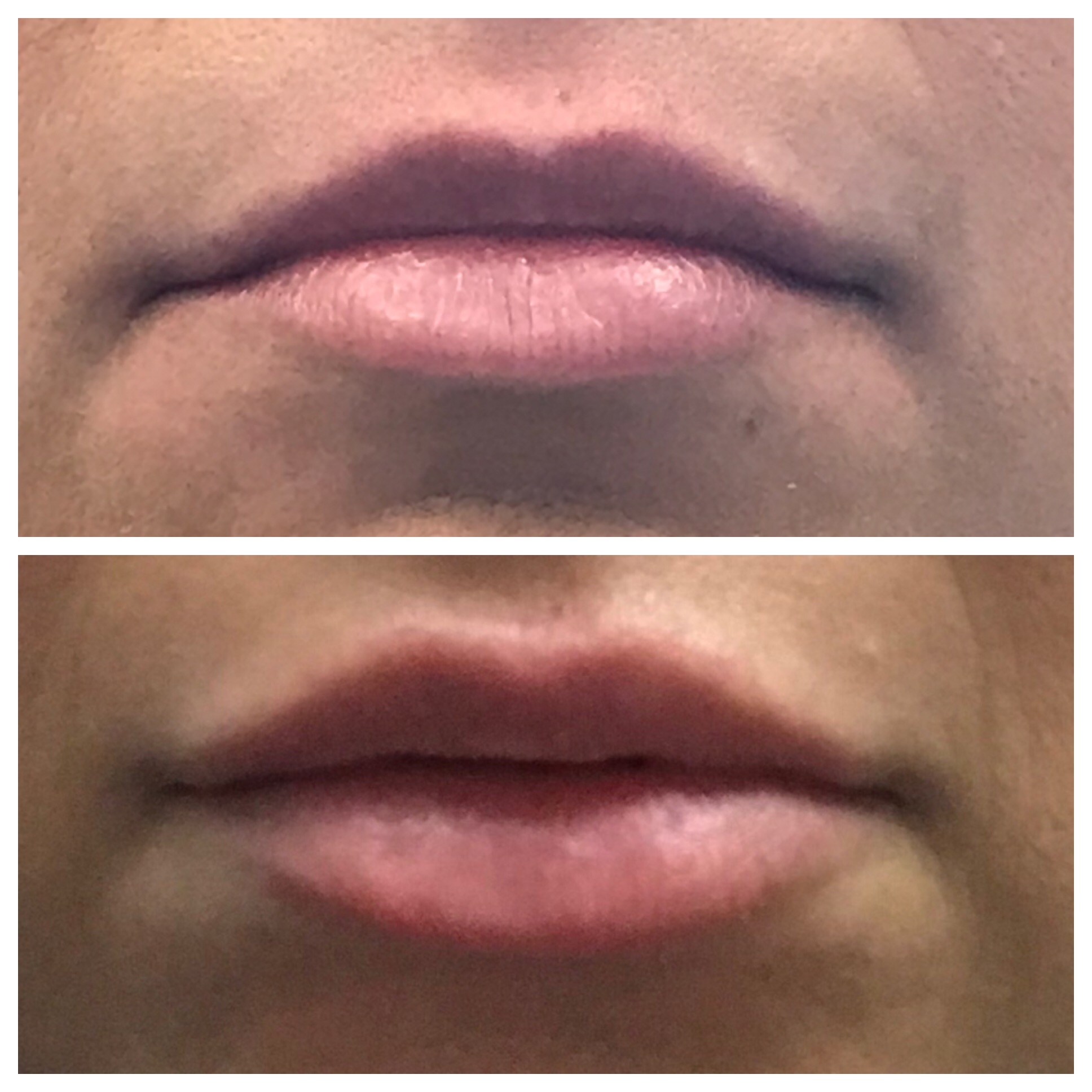 Juvederm before and after results on lips