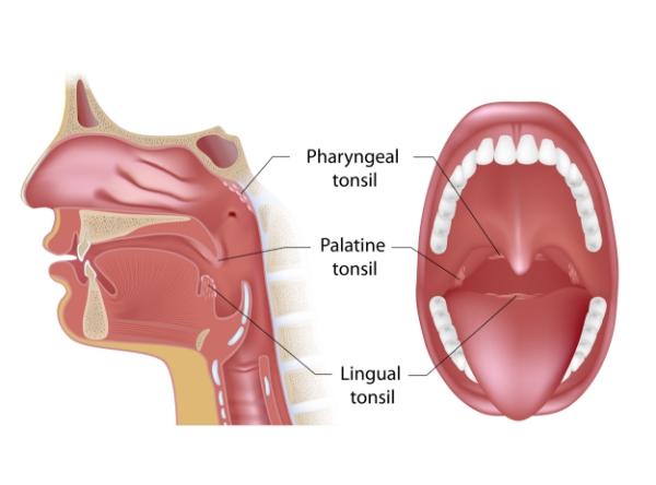 IntegratedENT - Tonsil