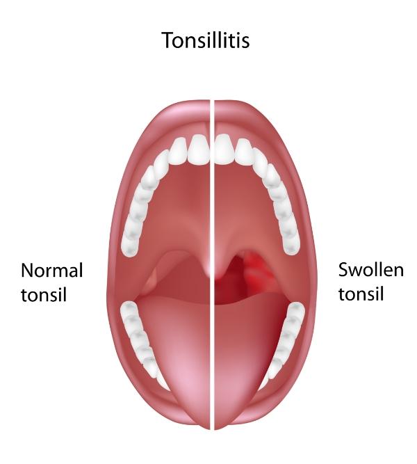 IntegratedENT - Tonsillitis